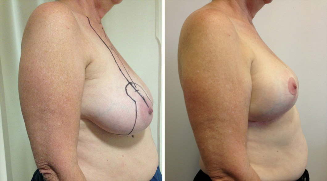 Patient 7 breast reduction before and after from the side