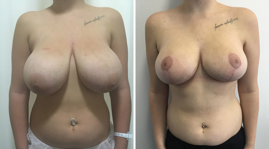 Patient breast reduction before and after