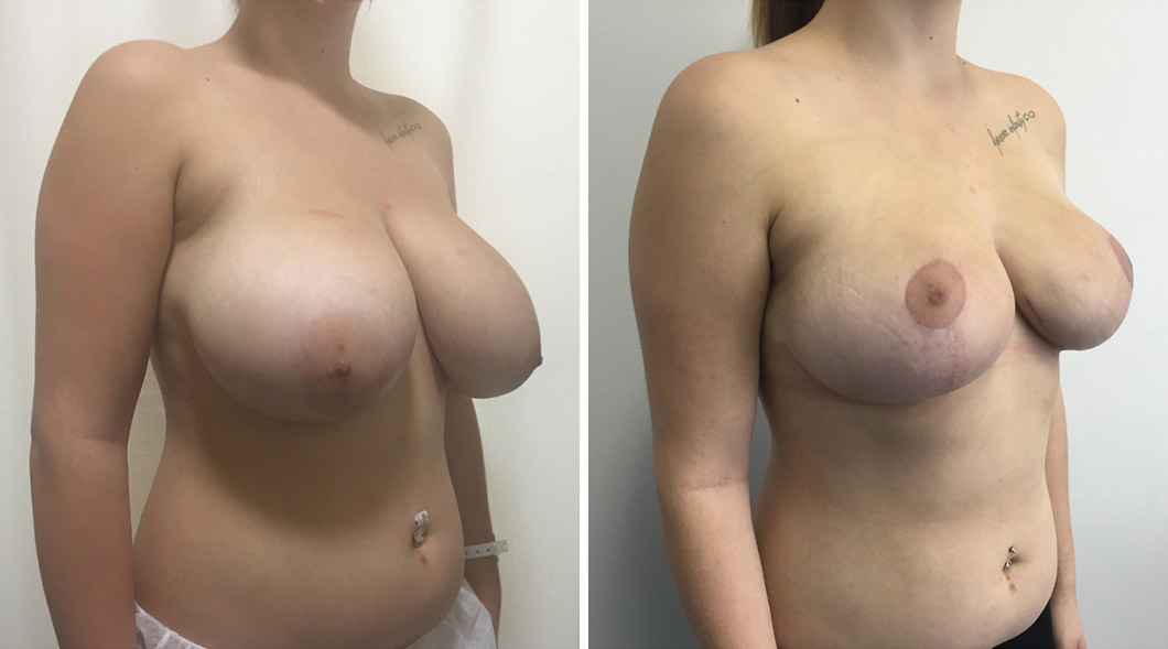 Patient breast reduction before and after from an angle