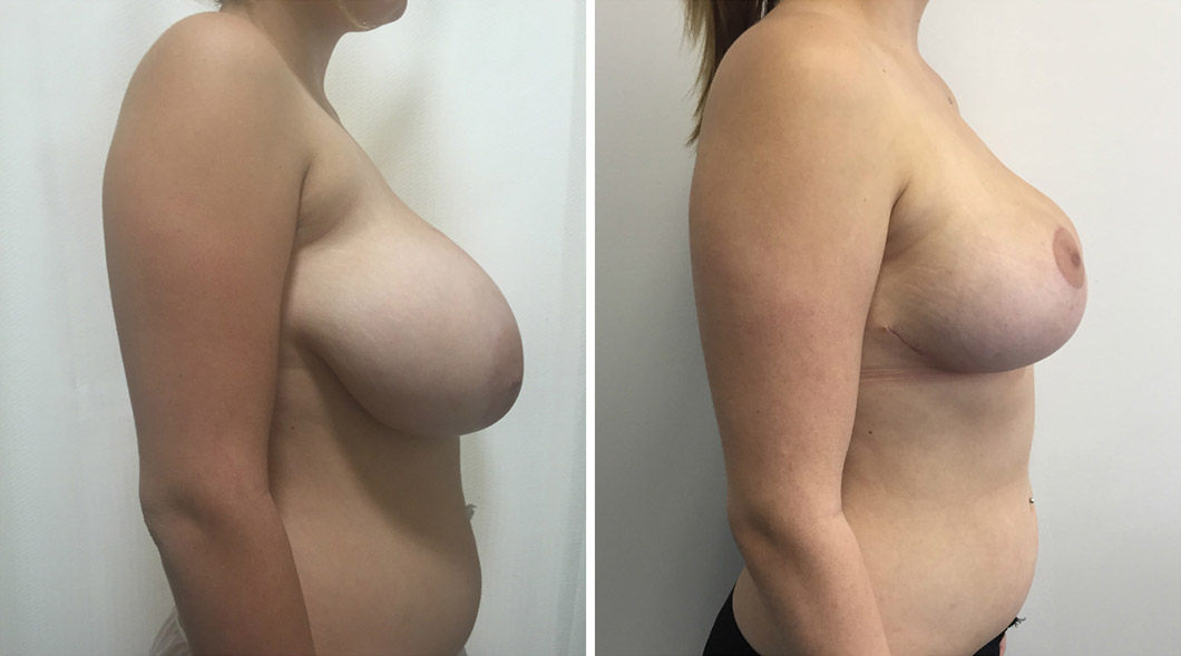 Patient breast reduction before and after from the side