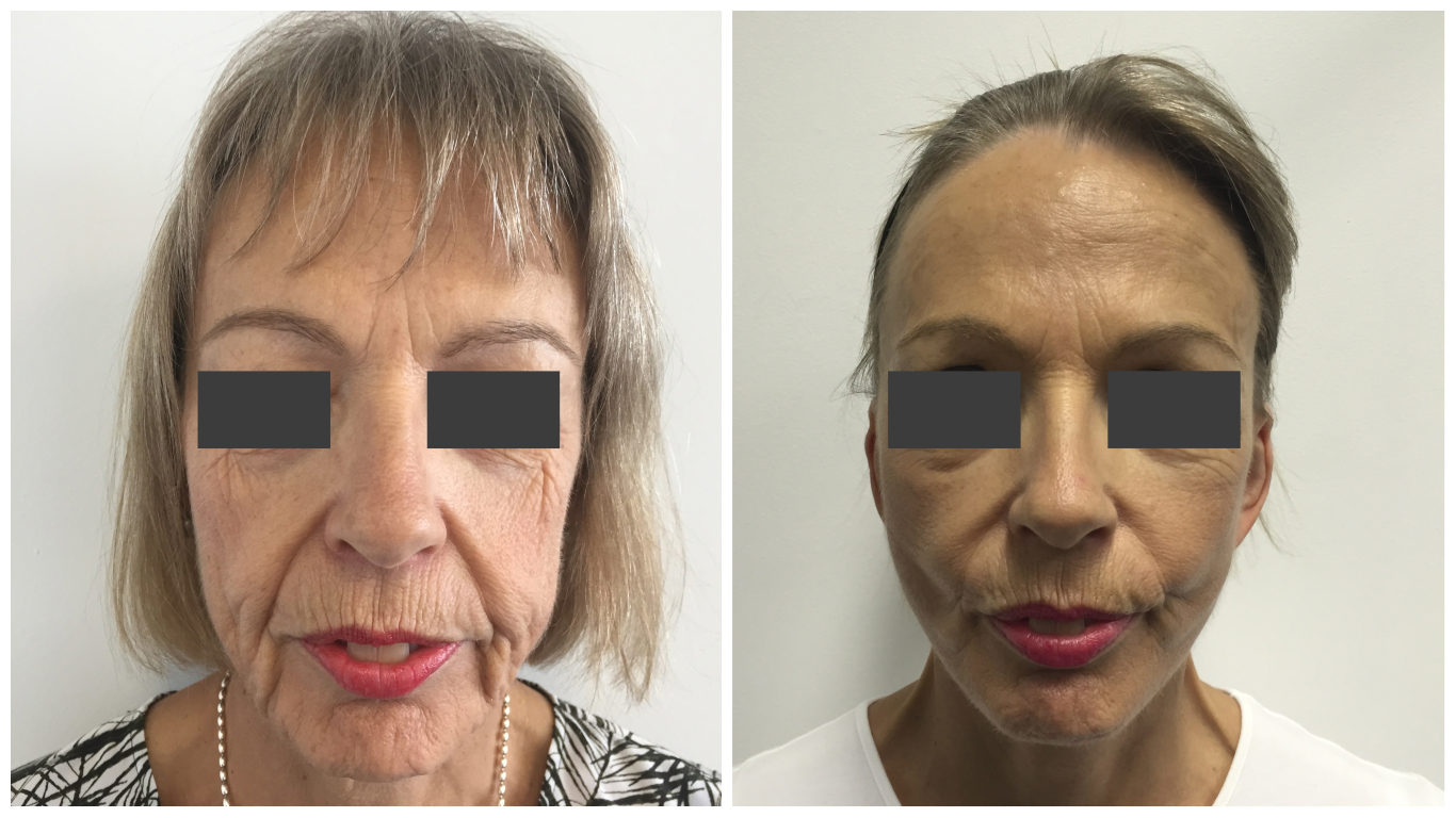 Facelift patient 01, before and after gallery, front view