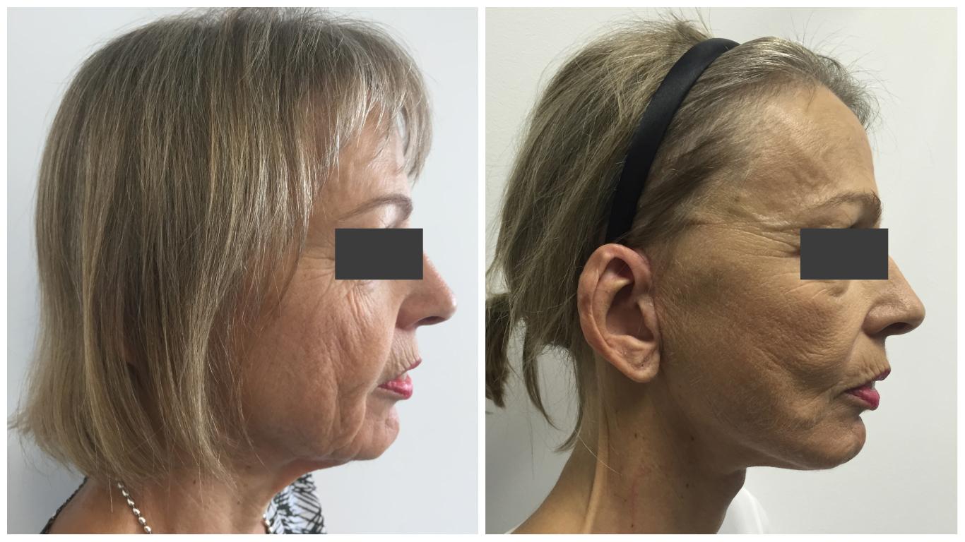 Patient-Facelift-1-Side