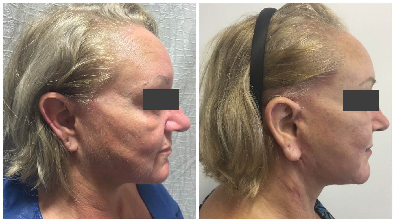 Before and after facelift, patient 02, side view