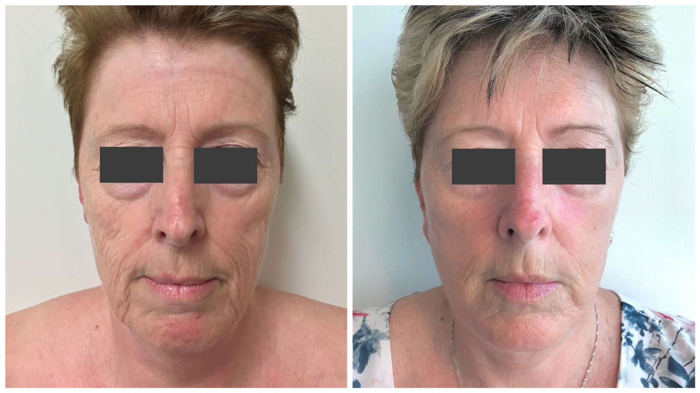 Facelift before and after, patient 03, front view