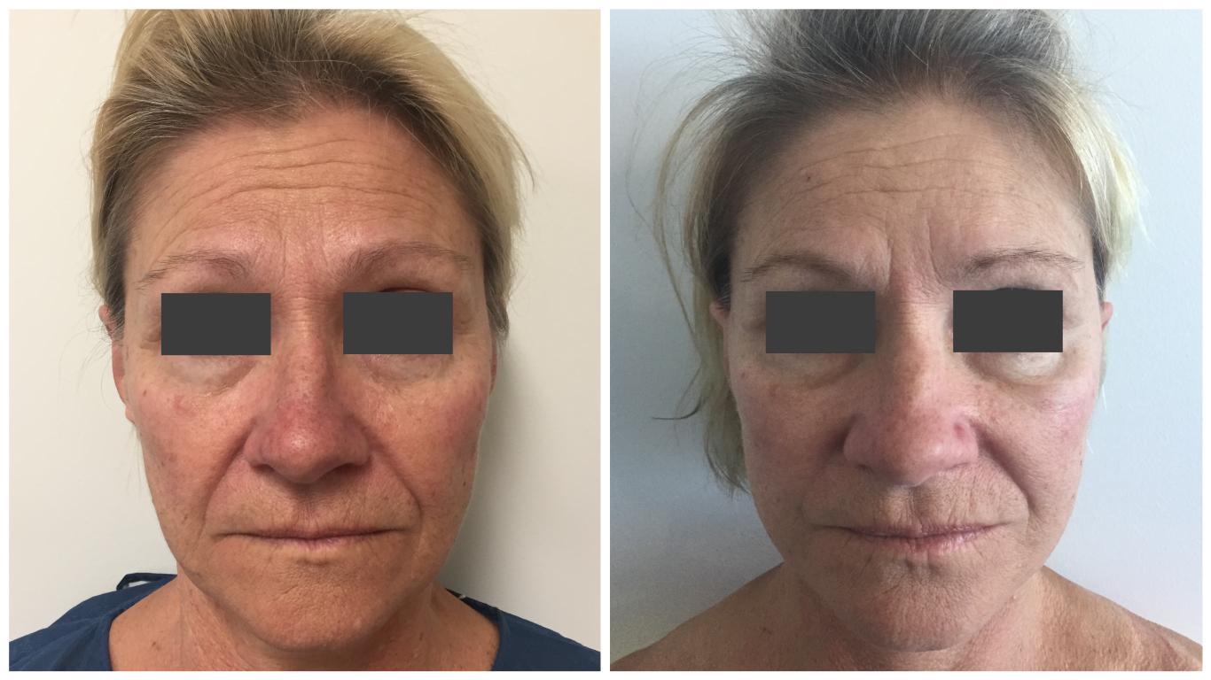 Patient-Facelift-4-Front