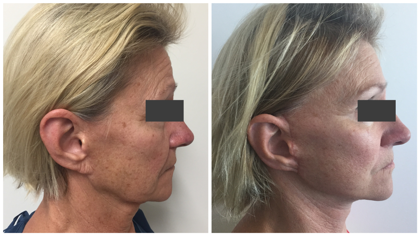 Before and after face lift, patient 04, side view