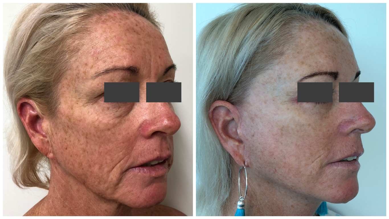 Before and after facelift, patient 06, angle view