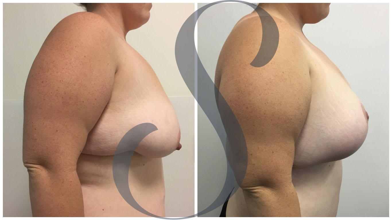 Breast Augmentation with Lift Gold Coast