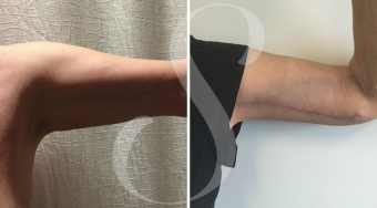 Patient one brachioplasty before and after