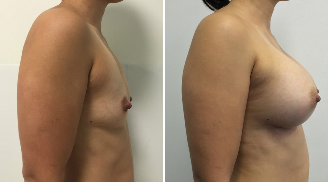 Breast Augmentation Gold Coast
