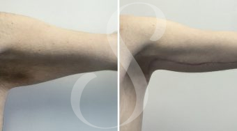 Patient 3 Brachioplasty before and after
