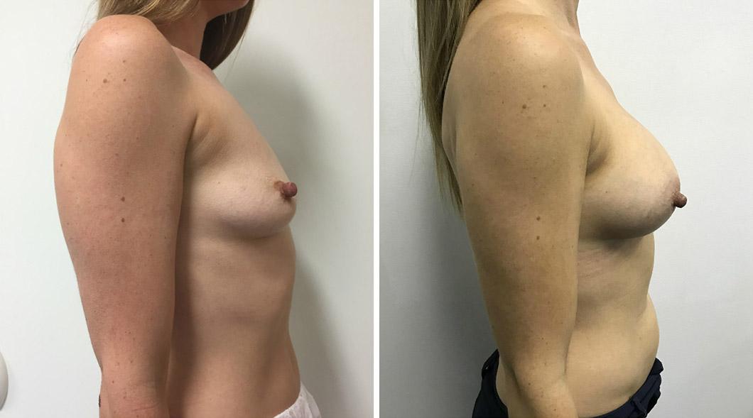 Breast Augmentation Gold Coast
