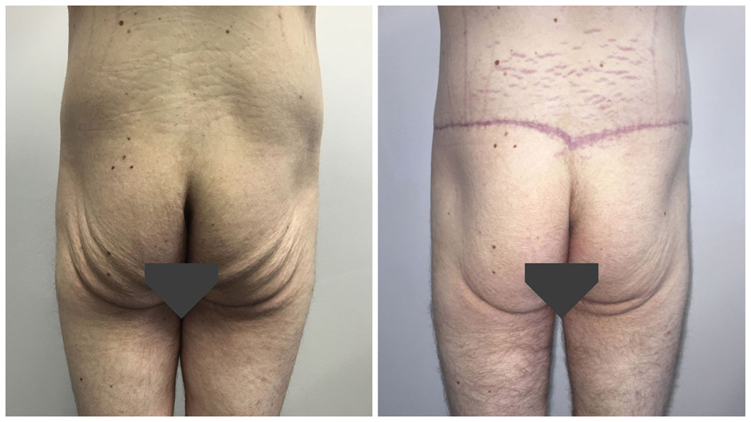 body lift procedure before and after, buttock lift image, patient 07, back view