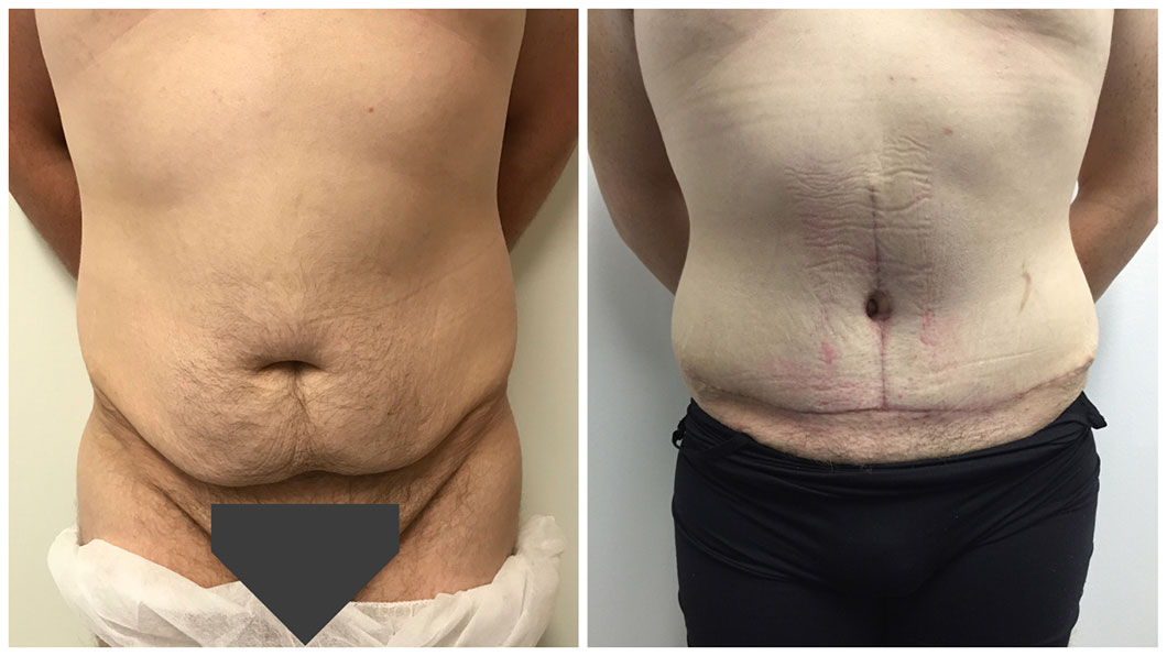Abdominoplasty Gold Coast