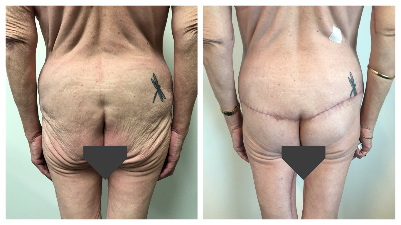 buttock lift before and after - patient 02 - back view