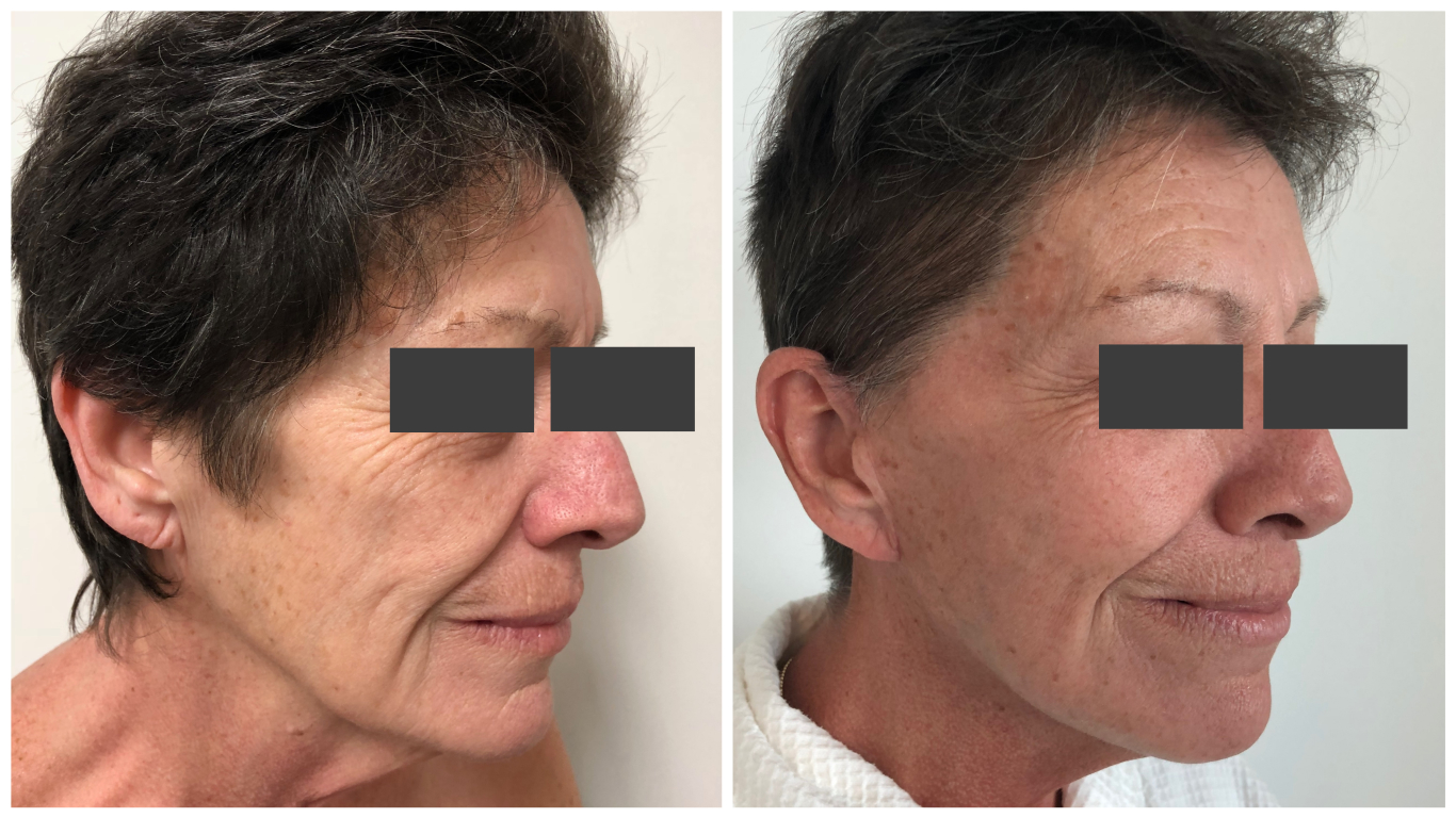 facelift before and after - patient 07 - side view
