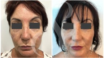 Plastic Surgery Before and Afters Gold Coast