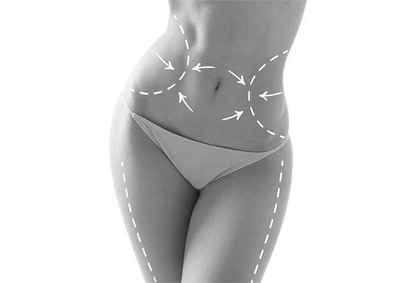 abdominoplasty - tummy tuck model - image 001
