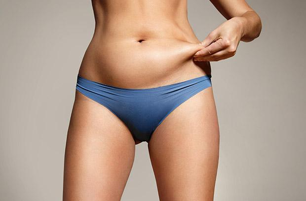 Tummy tuck surgery model 02