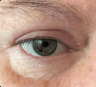 eyelid surgery - blepharoplasty - image 001