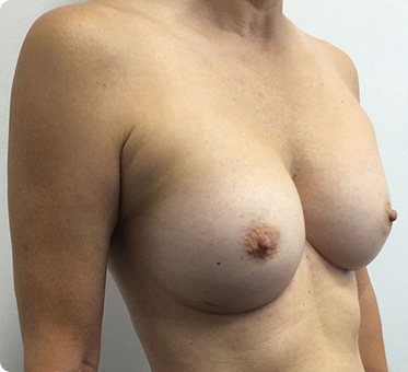 breast implant replacement image - patient 001 - 45 degree view