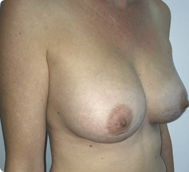 breast implants - image 001 - side view - after surgery
