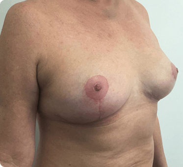 breast lift - image 001 - 45 degree view - after