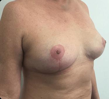 breast lift - image 001