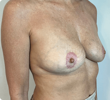 breast implant removal with fat transfer and lift - patient's image 002