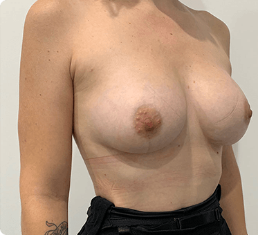 breast augmentation and fat transfer - image 002 - after