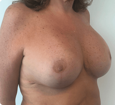 breast implants and lift - patient image 002