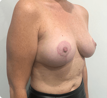 fat transfer to breasts and lift - image 003 - after