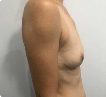 breast implant removal and fat transfer - patient image 003 - side view