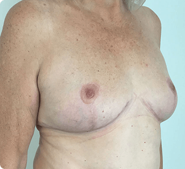 breast implant removal with fat transfer and lift - image 003