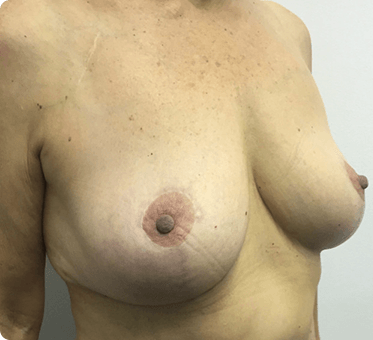 breast implant removal and lift - image 004 - after