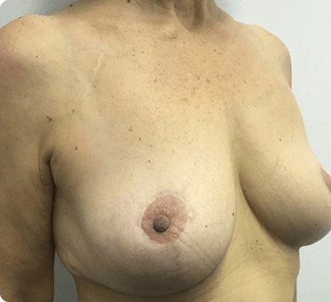 breast implant removal and lift - image 004