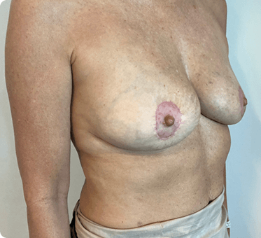 breast implant removal with fat transfer and lift - image 004