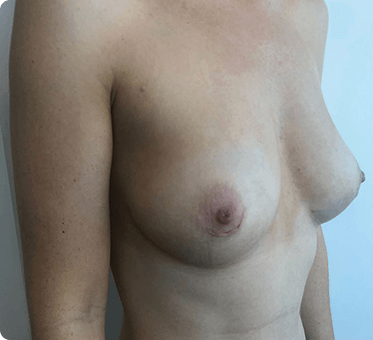 breast implant removal and fat transfer - image 005 - 45 degree view