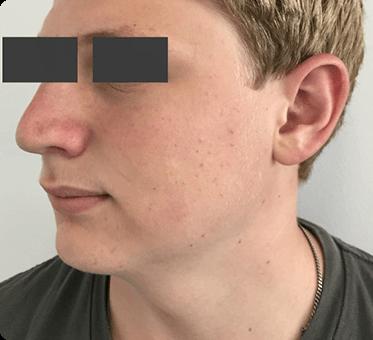 nose surgery - patient 005 - dr sawhney