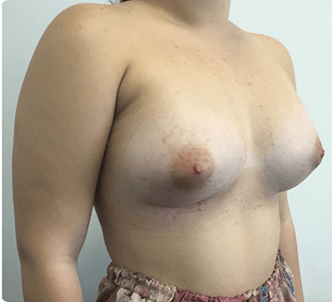 tuberous breasts - patient image - 006