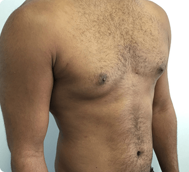 male breast reduction - surgery for gynaecomastia - image 007