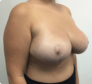 breast reduction surgery - image 003A - side