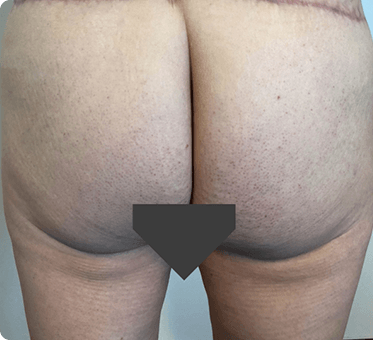 buttocks lift - thumbnail image 001