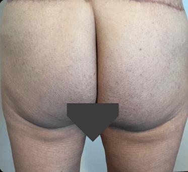 buttocks lift - thumbnail image 001