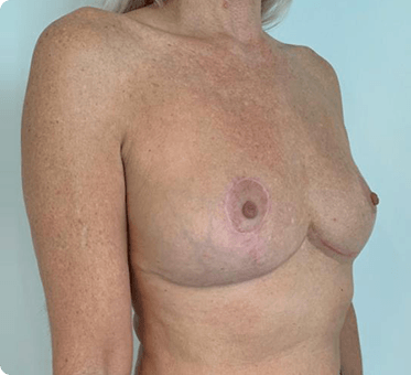 breast implant removal and fat transfer - image 003_v3 - side view