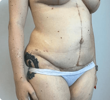 tummy tuck - abdominoplasty - thumb image 002