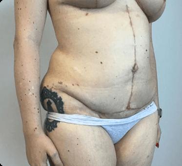 tummy tuck - abdominoplasty - thumb image 002