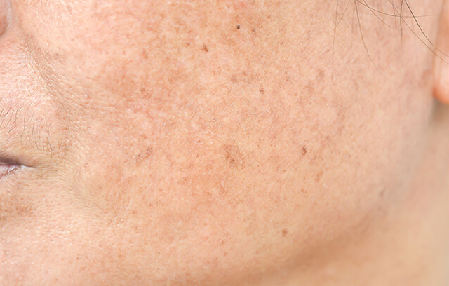 skin pigmentation on face - image 001