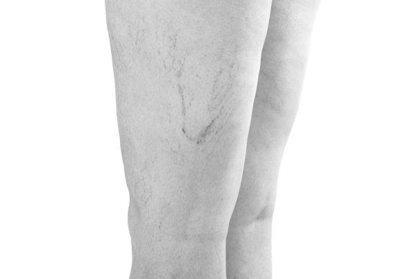 vascular lesions - image 002 - side