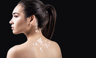 skin pigmentation - grid image 001